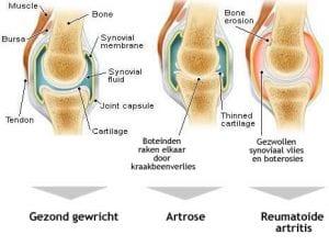 Esto es osteoartritis