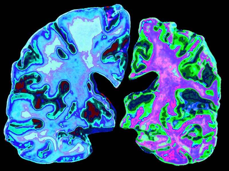Mogelijke link tussen Aluminium an Alzheimer